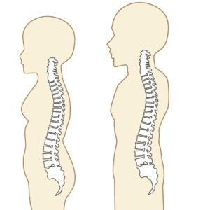 背骨のSの字の画像